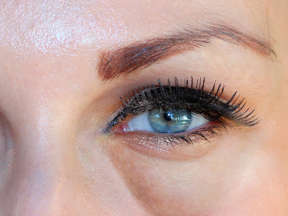 What Causes Puffy Eyes and How to Prevent Them   Elite Serum Rx
