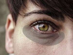 why-holoxyl-must-be-in-your-eye-serum