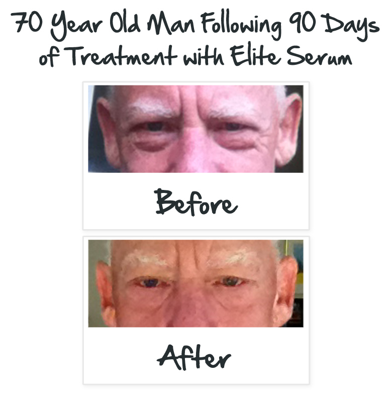 Before and After Elite Serum